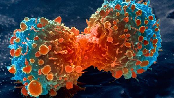 ابتلای سالانه 3800 گیلانی به بیماری سرطان /شیوع کدام سرطان ها در گیلان بیشتر است؟