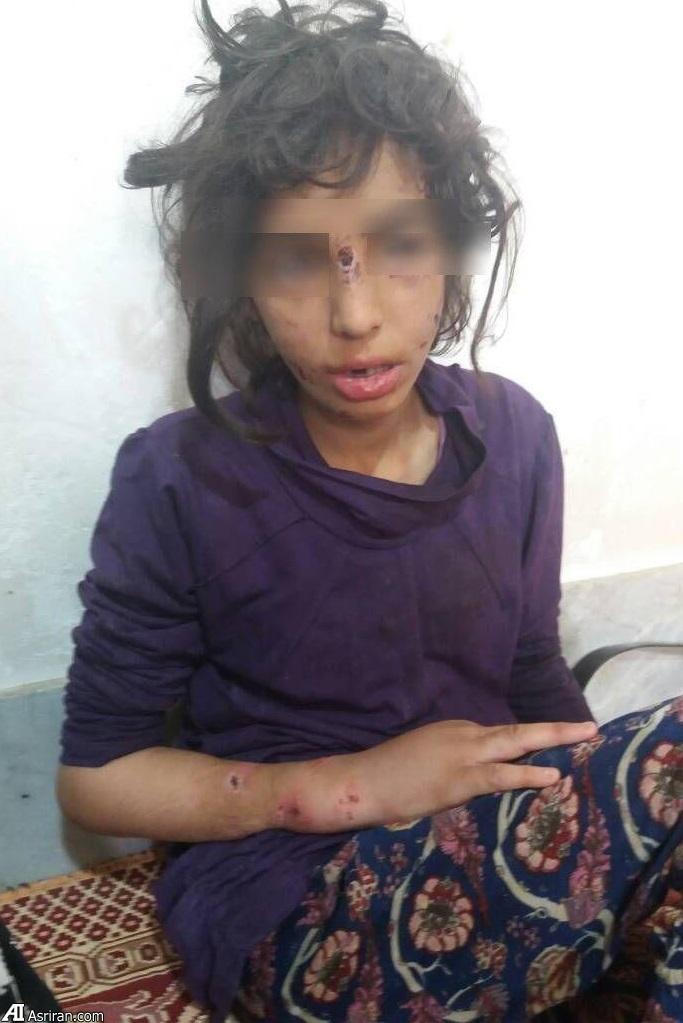 عکس: سه کودک ماهشهری در چه شرایطی پیدا شدند؟ | نامادری با تبر دست دختر را شکست