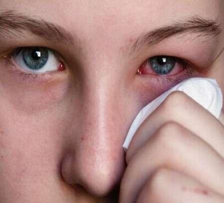 خواص باورنکردنی گلاب برای سلامت چشم|درمان خانگی چشم با گلاب