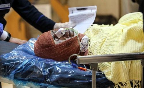 مصدومیت بیش از 1600 نفر در چهارشنبه آخرسال/چشم یک زن جوان گیلانی تخلیه شد